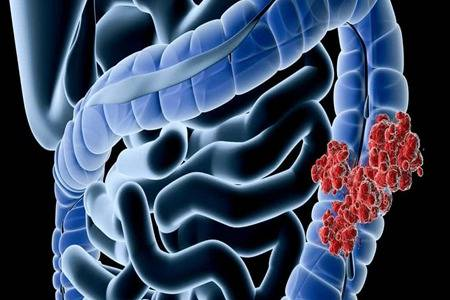 大肠癌的早期症状有哪些 怎么预防大肠癌的发生