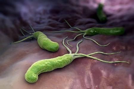 幽门螺旋杆菌是什么原因引起的?幽门螺旋杆菌最好的治疗方法