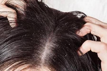 头皮屑多是什么原因引起的 女性头皮屑多还脱发怎么办